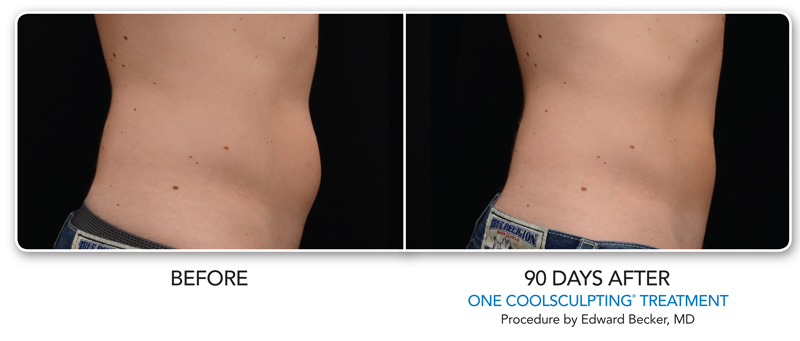 men abdominal CoolSculpting ® treatments 1