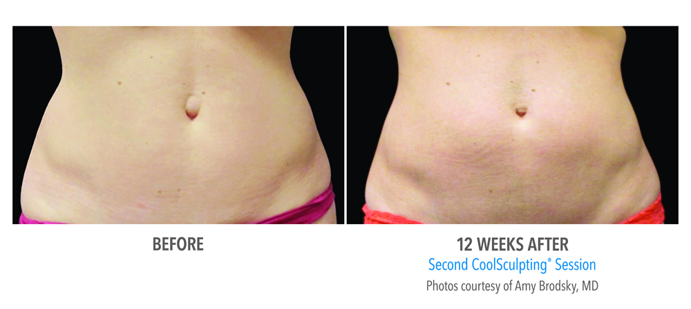 Orange County CoolSculpting ® Before and After Photos #1