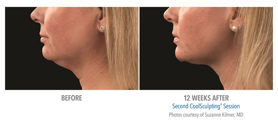 Orange County CoolSculpting ® Before and After Photos #10