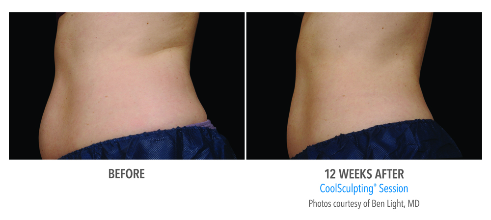 Orange County CoolSculpting ® Before and After Photos #11