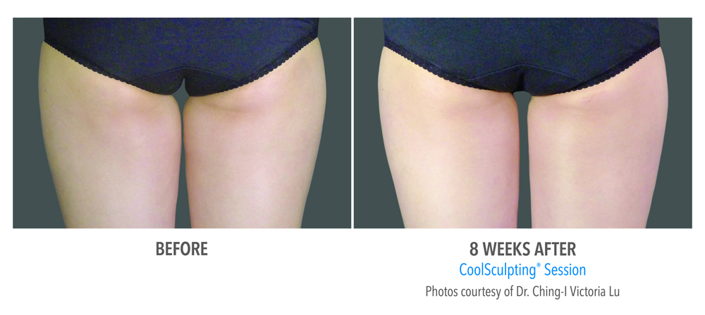 Orange County CoolSculpting ® Before and After Photos #12