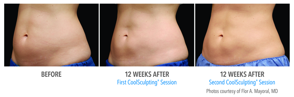 Orange County CoolSculpting ® Before and After Photos #13