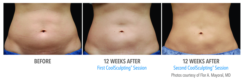 Orange County CoolSculpting ® Before and After Photos #14