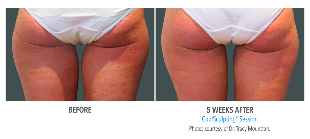 Orange County CoolSculpting ® Before and After Photos #15