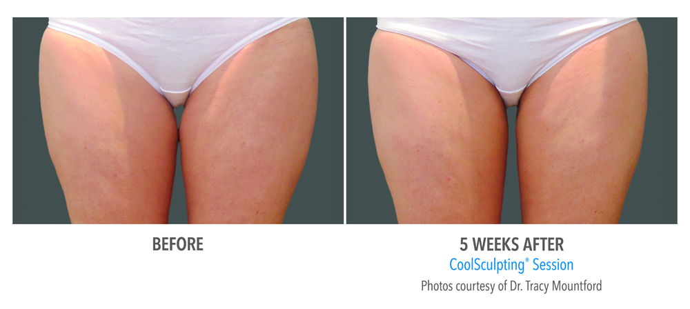 Orange County CoolSculpting ® Before and After Photos #16