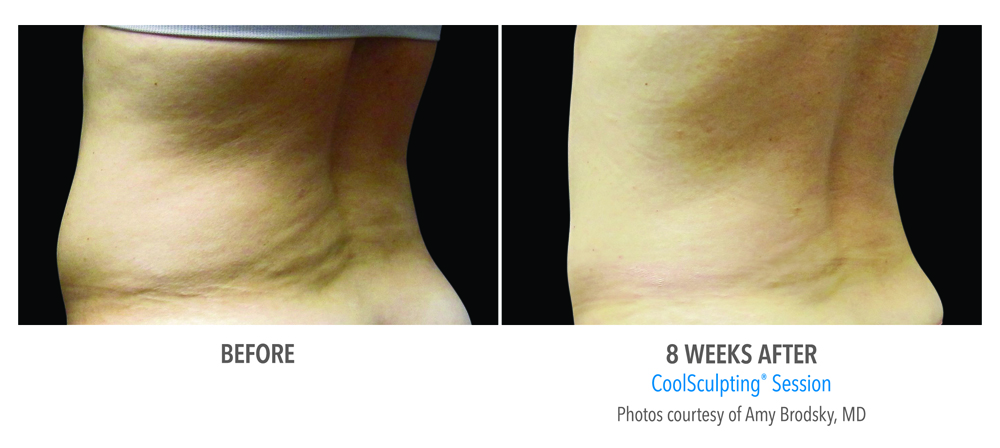 Orange County CoolSculpting ® Before and After Photos #2