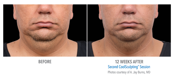 Orange County CoolSculpting ® Before and After Photos #3
