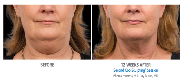 Orange County CoolSculpting ® Before and After Photos #4