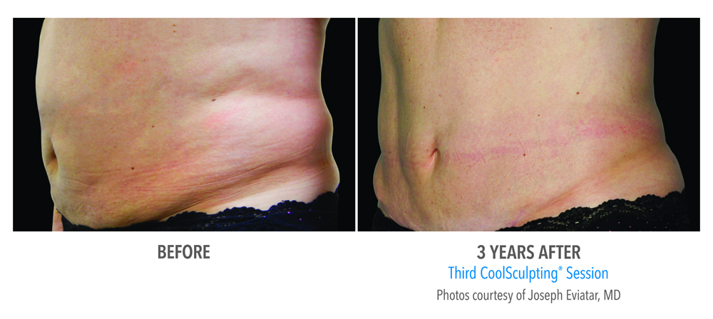 Orange County CoolSculpting ® Before and After Photos #5