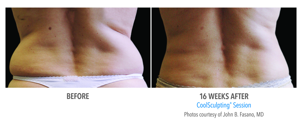 Orange County CoolSculpting ® Before and After Photos #6