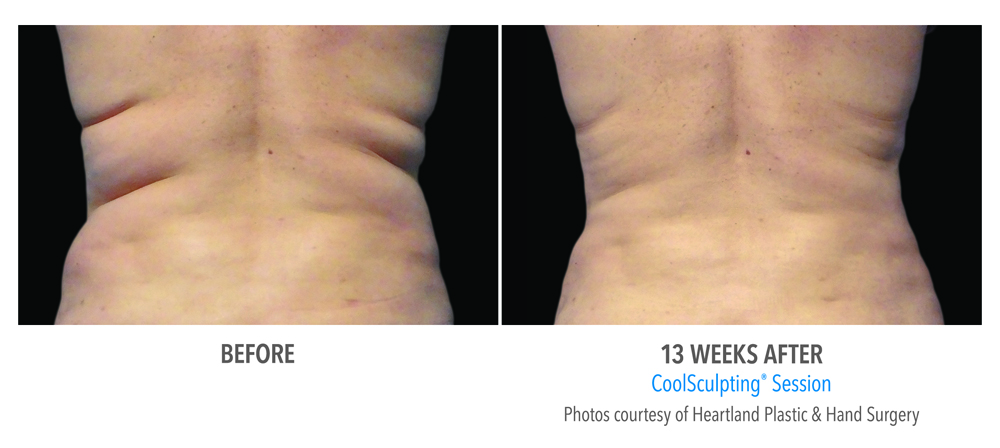 Orange County CoolSculpting ® Before and After Photos #7