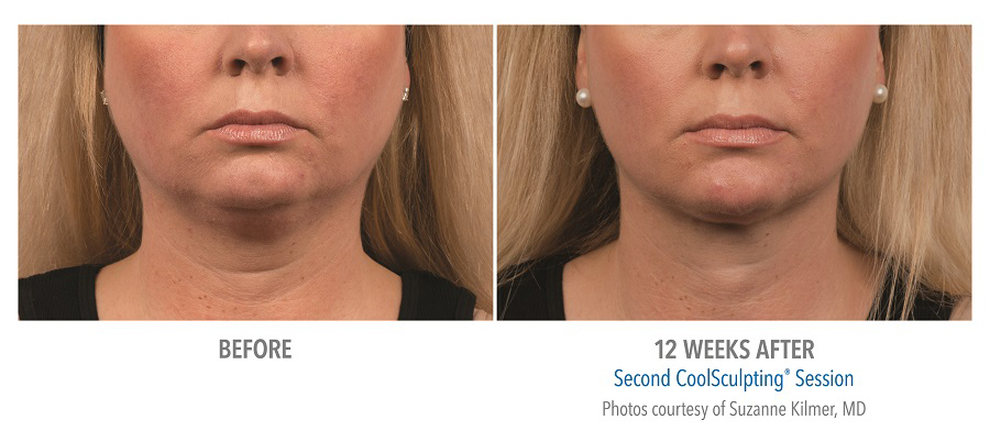 Orange County CoolSculpting ® Before and After Photos #8