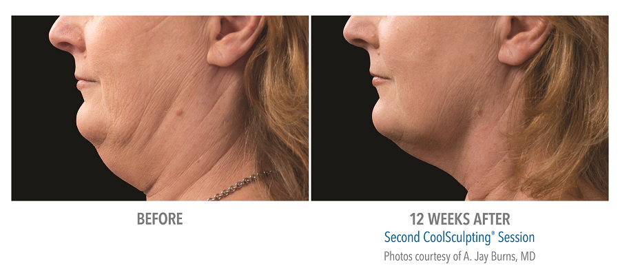 Orange County CoolSculpting ® Before and After Photos #9