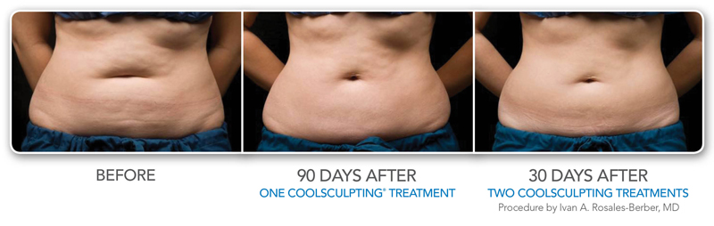 Coolsculpting 174 For Women Orange County Coolsculpting